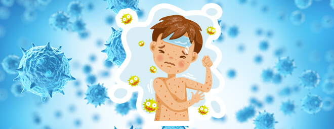 麻疹(はしか)