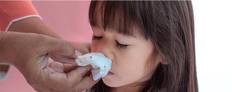 鼻血(鼻出血)